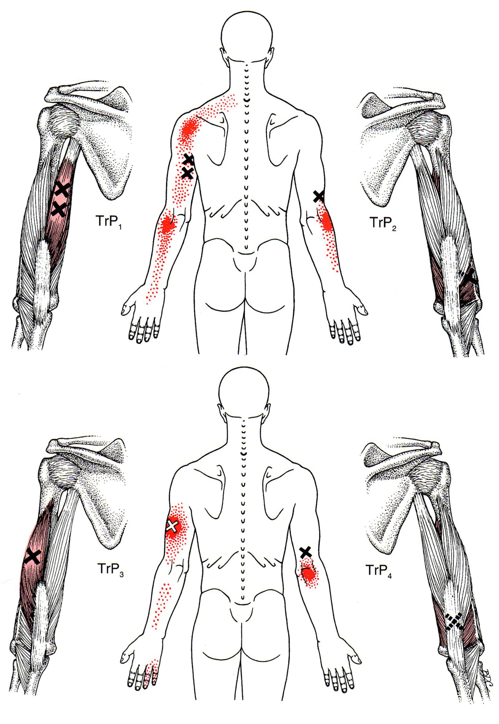 Trizeps (Arm) | The Trigger Point & Referred Pain Guide | Trigger ...