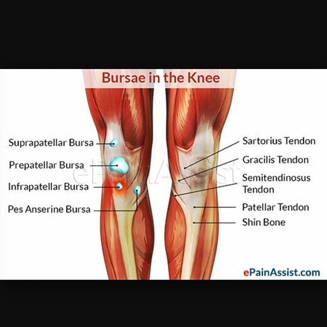 Friday Focus Bursitis Is A Painful Condition That Affects The Fluid