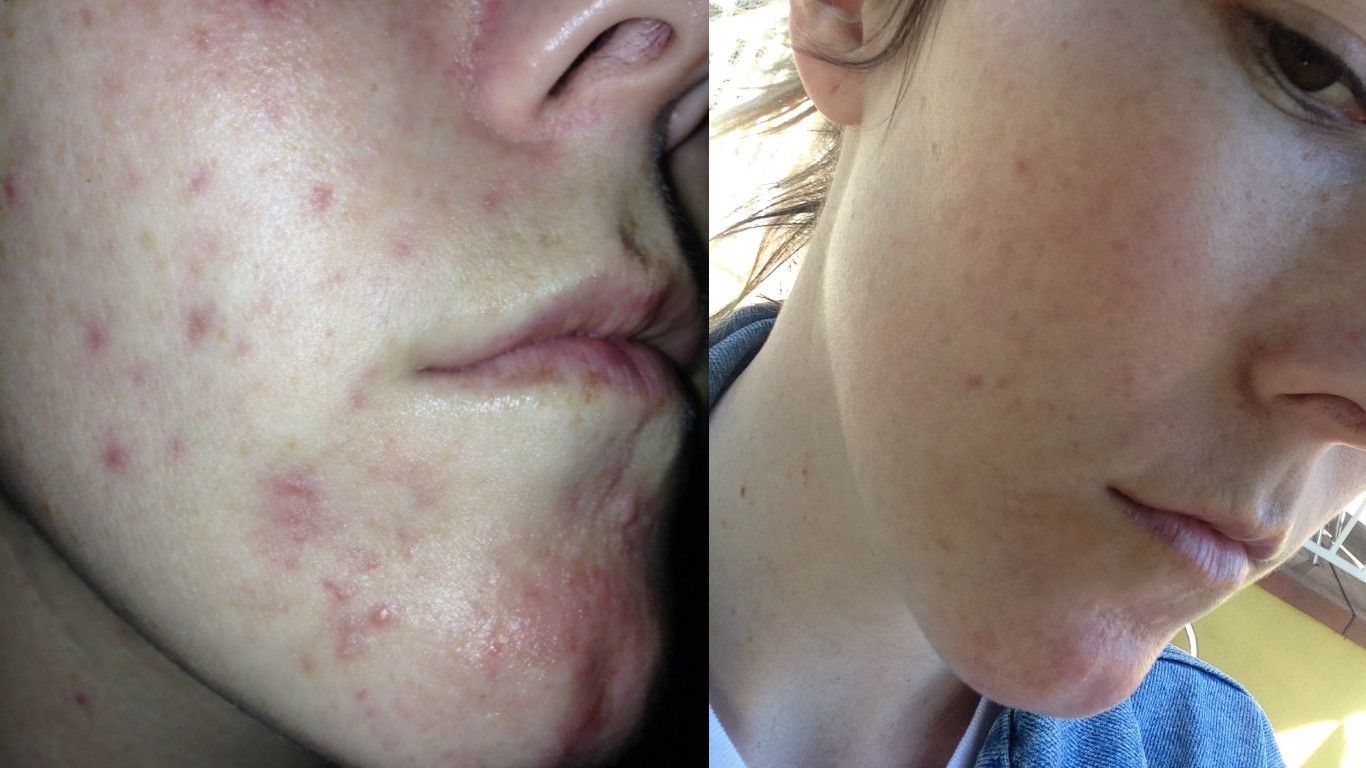 How To Get Rid Of Cystic Acne In A Week