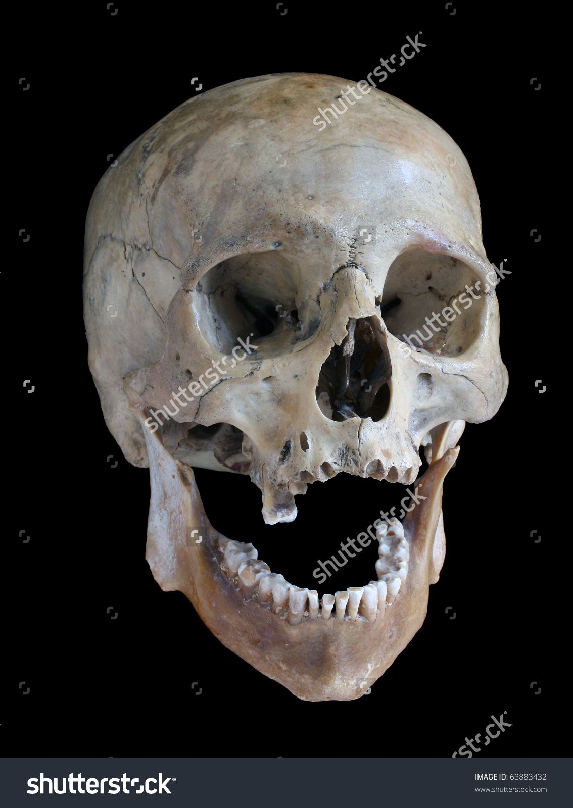 Skull Of The Person On A Black Background. Стоковые ...