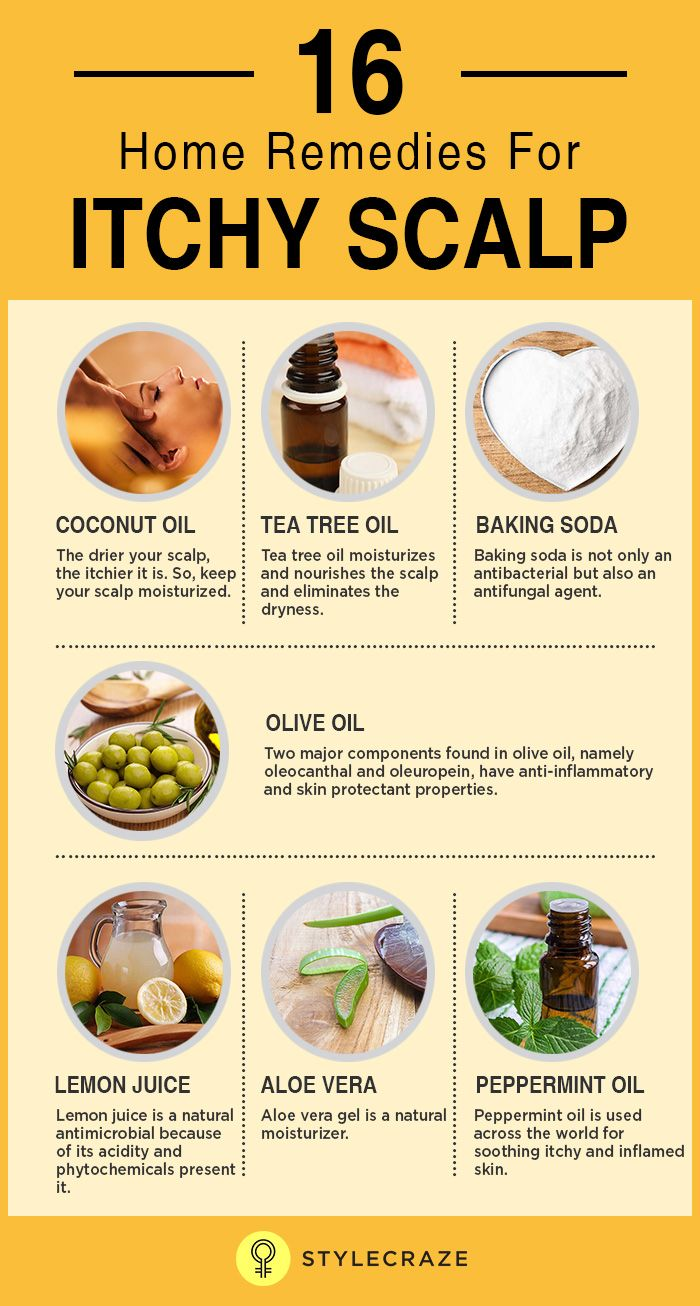 16 Home Remedies For Itchy Scalp Itchy scalp, Dry scalp