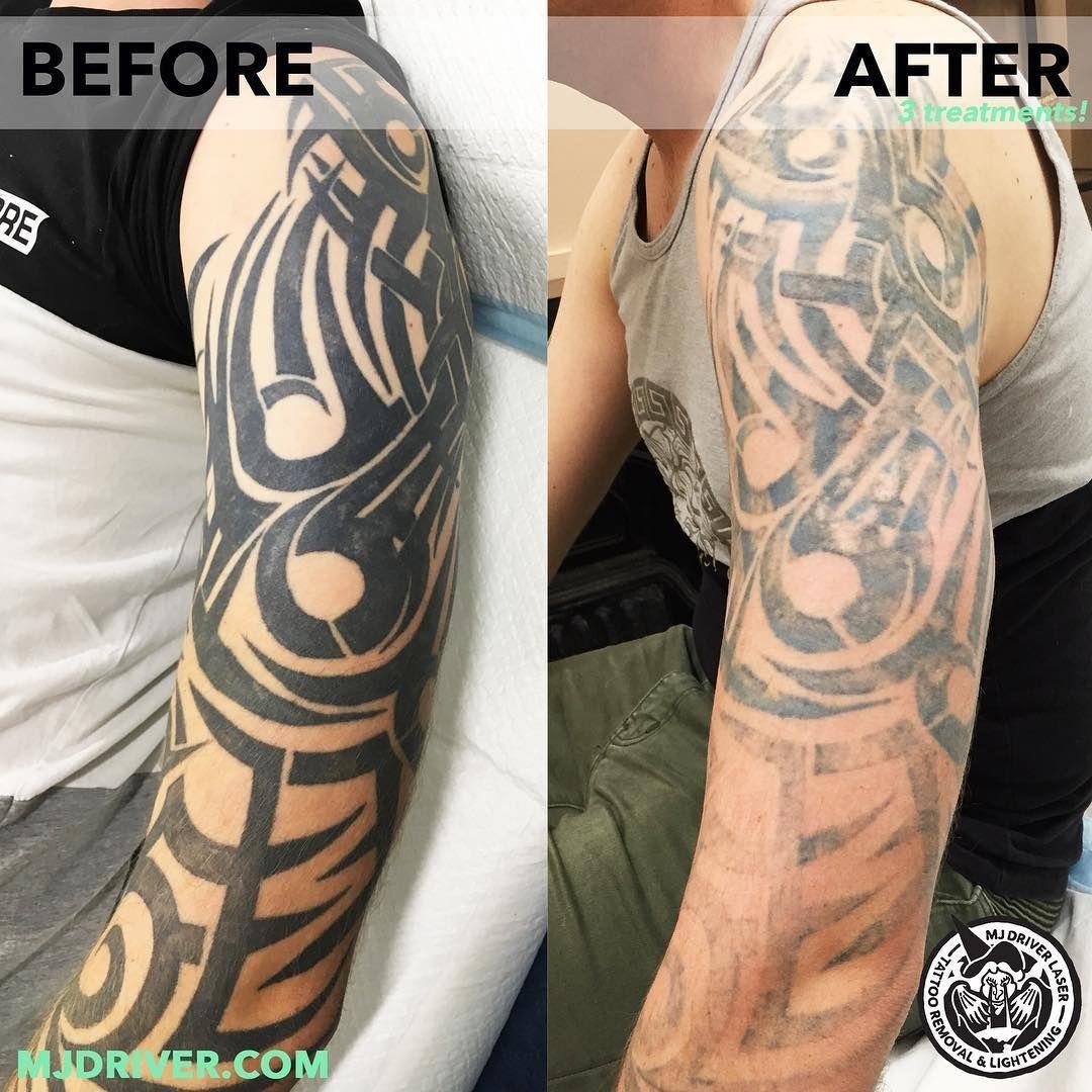 Tattooremovallaser Laser Tattoo Tattoos Tattoo Removal