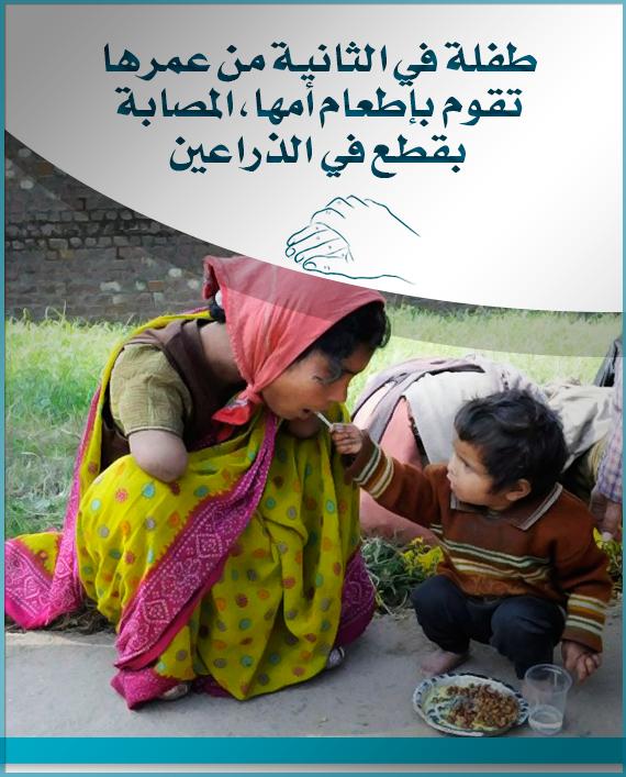 طفلة في الثانية من عمرها تقوم بإطعام أمها المصابة بقطع في الذراعين Image