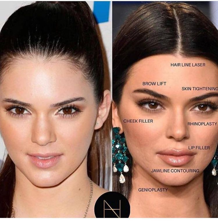 How To Become An Instagram Model Facial Fillers Cosmetic Fillers Celebrity Plastic Surgery