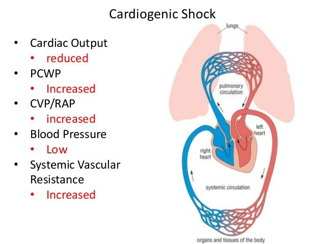 cardiogenic-shock-signs-and-symptoms