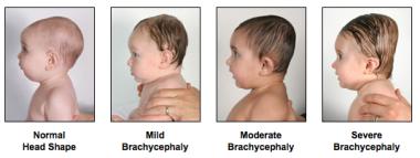 brachycephaly - Battling Brachycephaly and Plagiocephaly | One family's findings ... brachycephaly.wordpress.com3… | Flat head syndrome ...