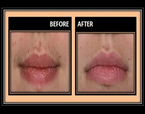 How To Wax An Upper Lip Easy To Use Step By Step Guide Upper Lip Upper Lip Hair Upper Lip Waxing