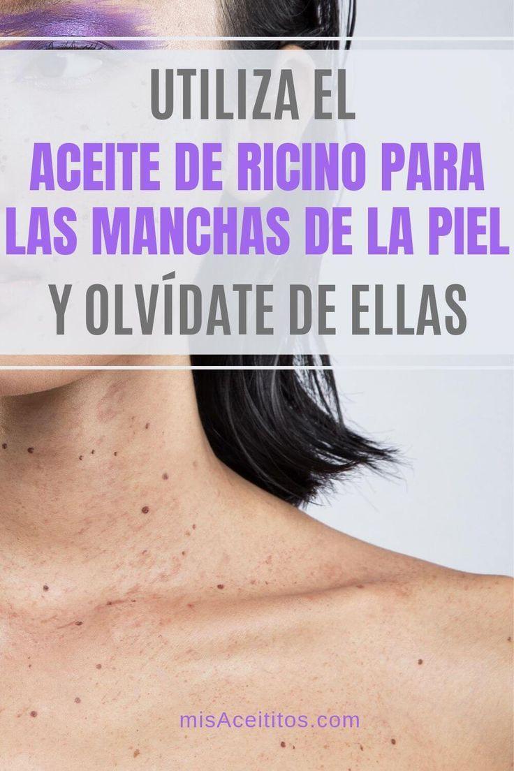 El uso de aceite de ricino para manchas en la piel es un producto natural   CUIDADOS DE BELLEZA DE MARIAVIBOROVA