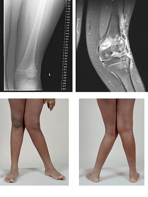csípő-sprain kenőcskezelés