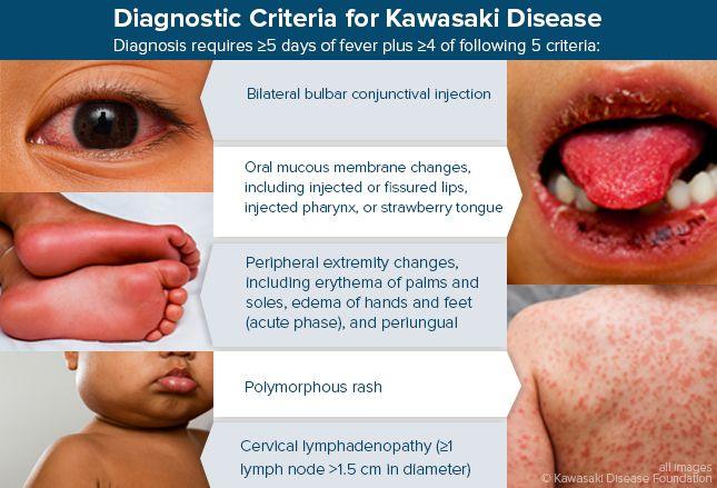 Diagnostic Criteria for Kawasaki Disease | Pediatric nursing, Pediatric nurse practitioner, Kawasaki disease