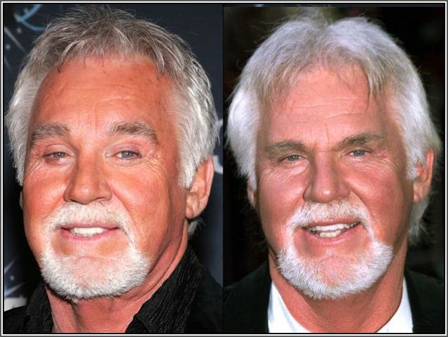 Kenny Rogers Plastic Surgery Before And After Plastic
