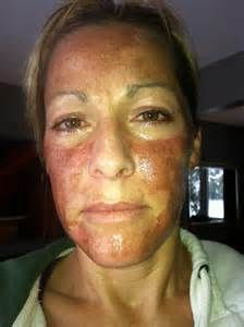 Chemical Peel Gone Wrong Bing Images Wtf Am I Looking