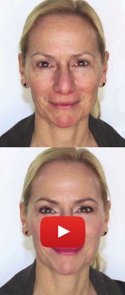 Épinglé sur Astuce maquillage