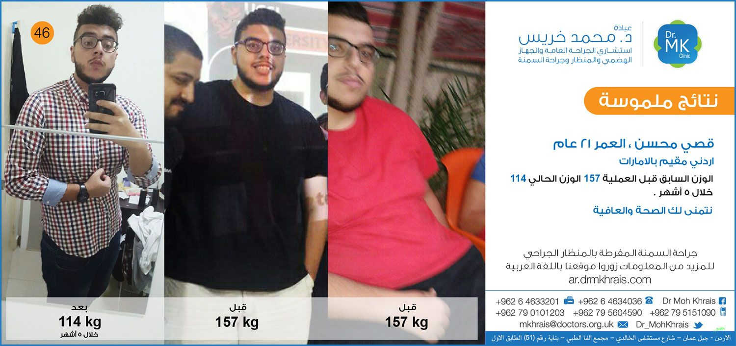 Pin By Drmkhrais On قبل وبعـد Moh Abs Shopping