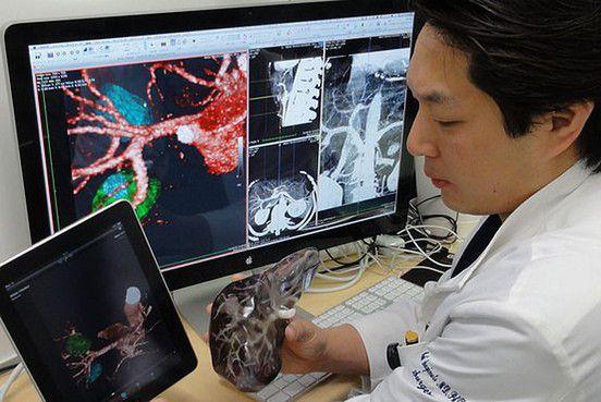 Órganos impresos en 3D para guiar el bisturí del cirujano