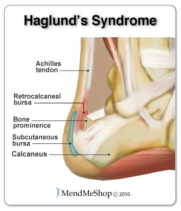 Haglund\'s Syndrome - inflammation in the Achilles tendon and ...