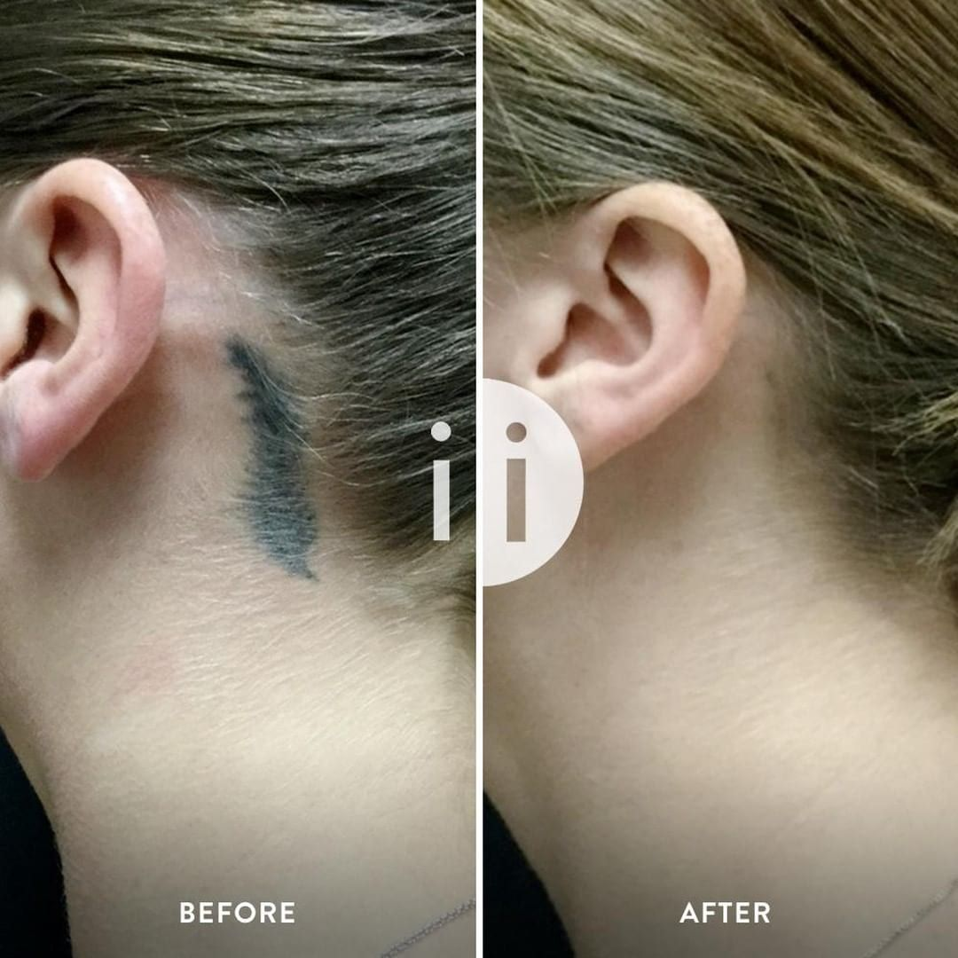 Innovative laser tattoo removal invisible ink tattoo