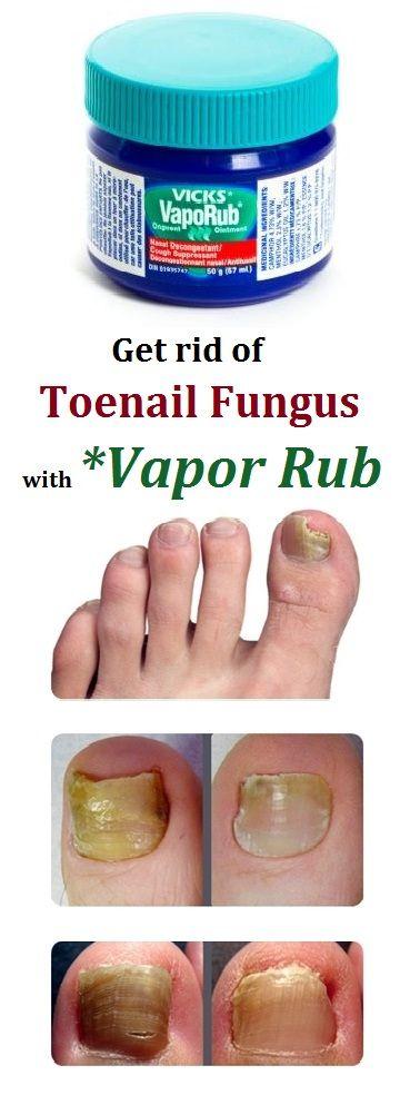 Best Toenail Fungus Treatment With Vicks VapoRub | Health and Beauty ...