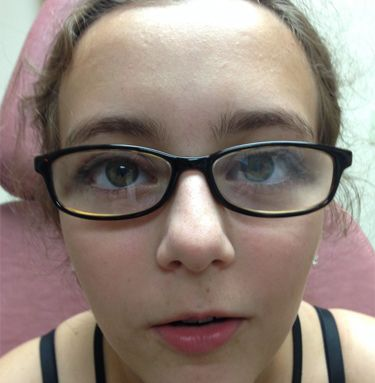 1e0fdcdf1a4c Interested in learning about Strabismus   Take a look at our latest blog  post for parents of children in glasses.