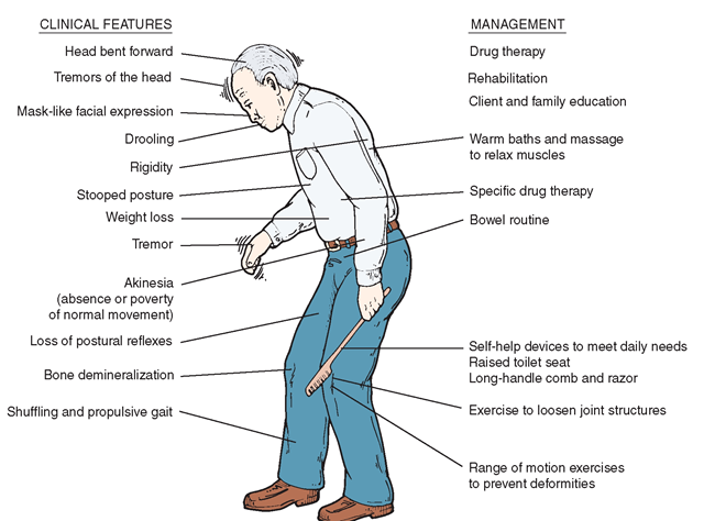 The Client With Parkinson S Disease Physical Tremors
