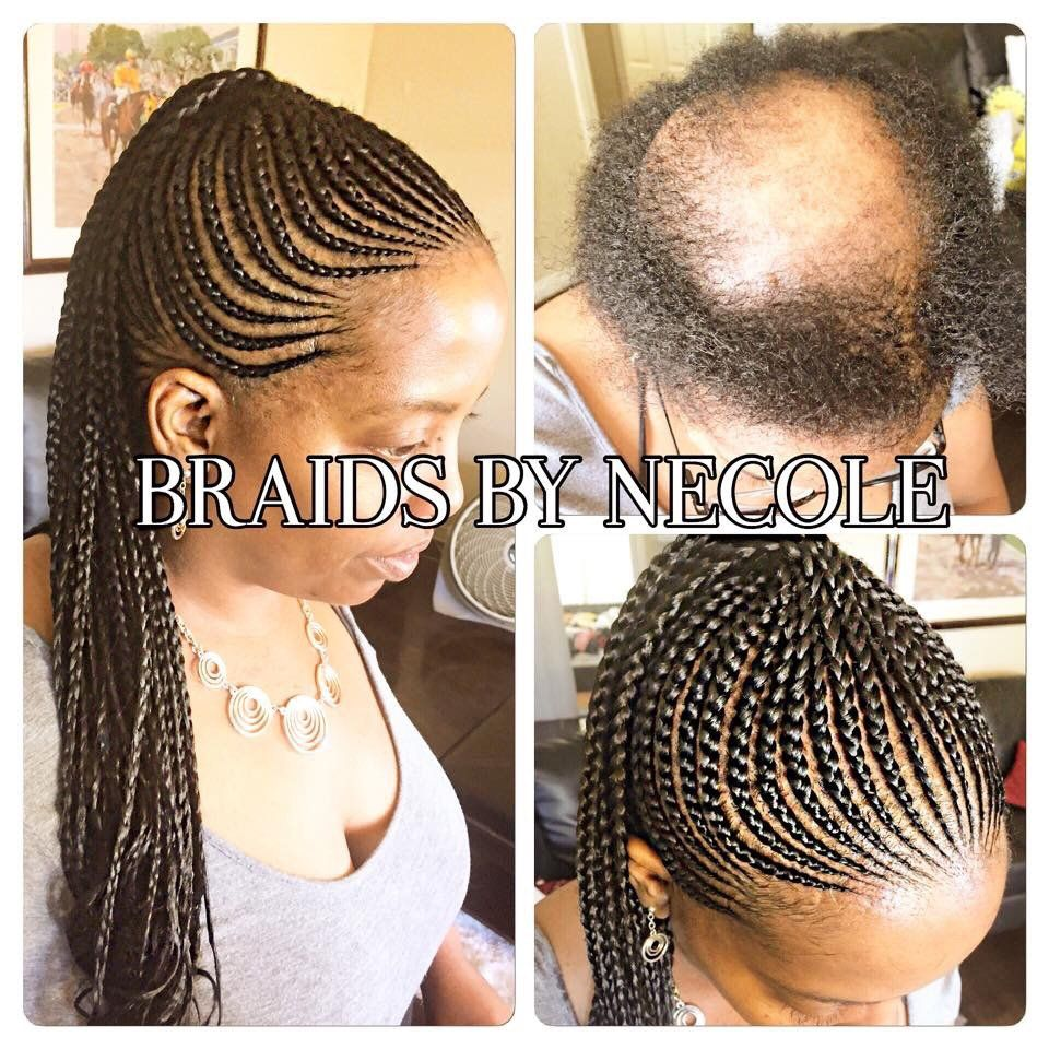 14 Extraordinary Alopecia Camouflage Cornrows By Braids By Necole Braids For Thin Hair Braids For Black Hair Alopecia Hairstyles