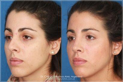 Cirurgia Para Nariz Grande Rinoplastia Antes E Depois Com Imagens