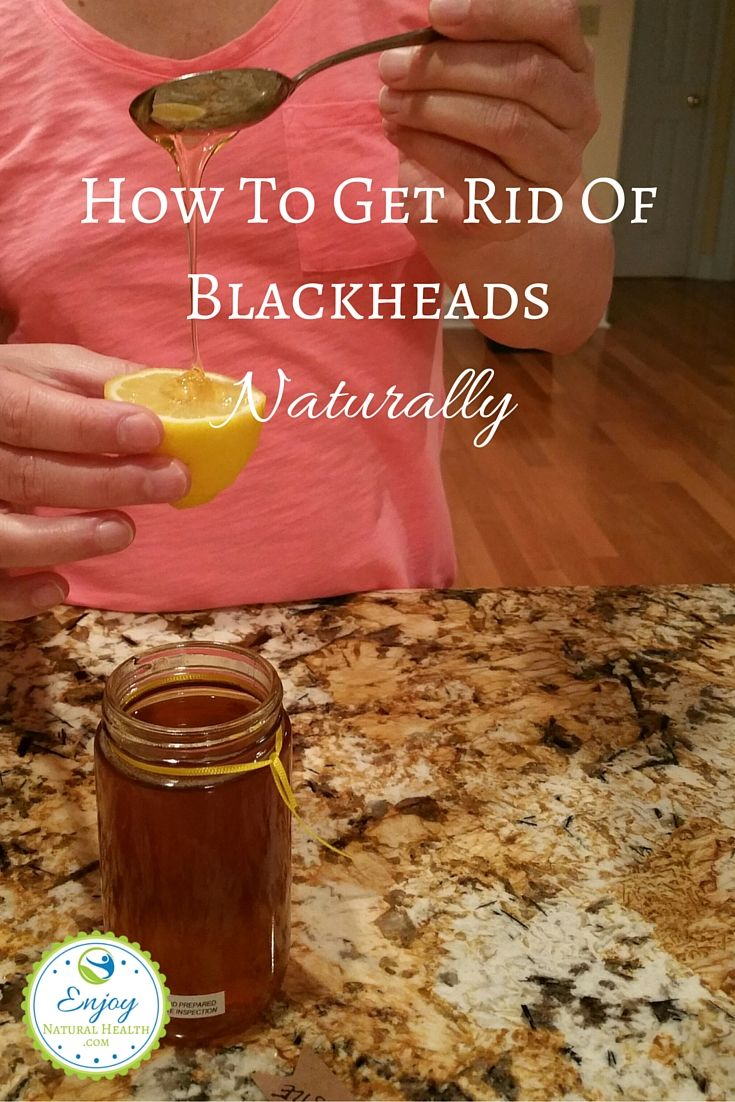 How To Get Rid Of Blackheads Naturally - Enjoy Natural Health