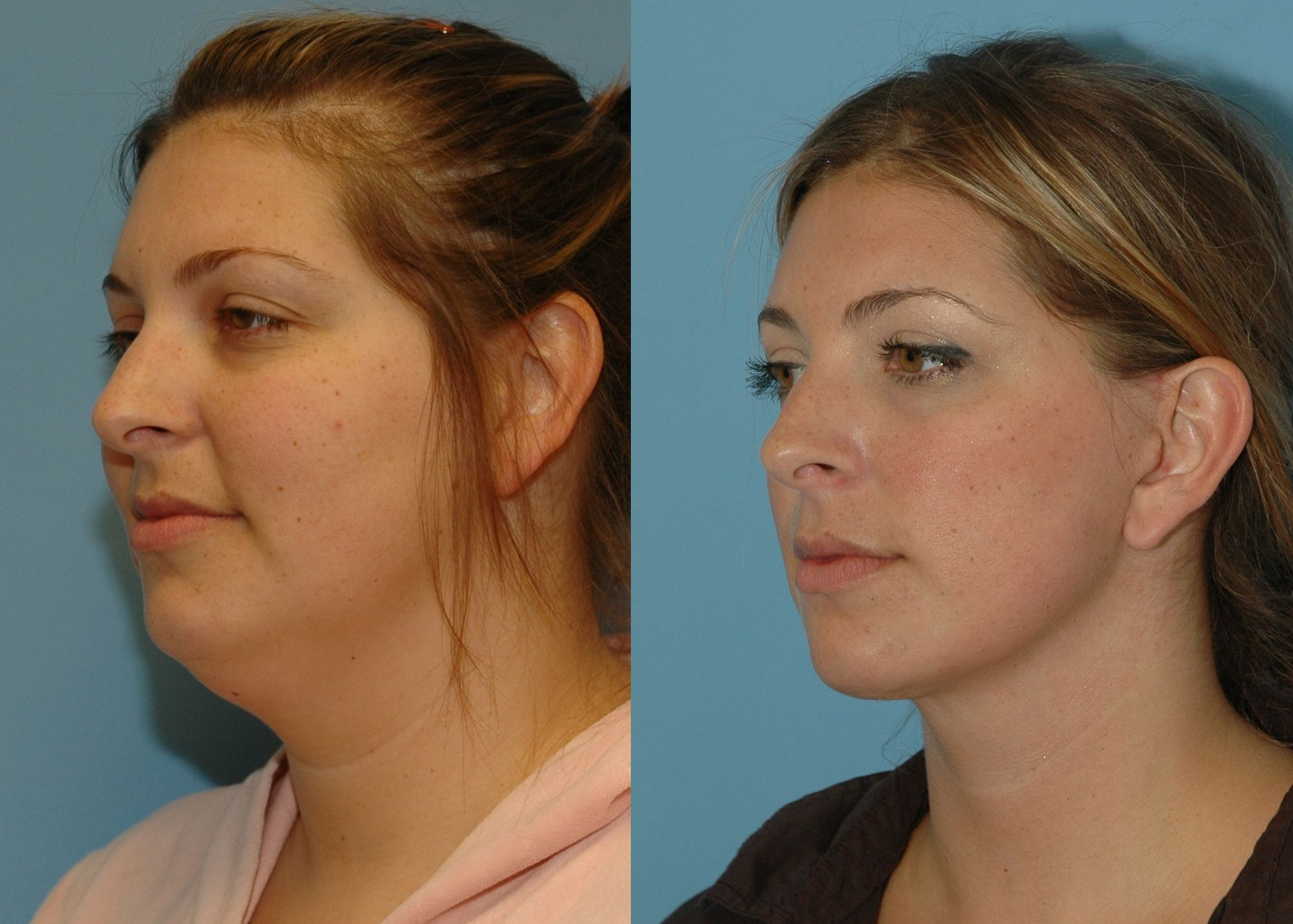 Direct Neck Lift   Marietta Facial Plastic Surgery
