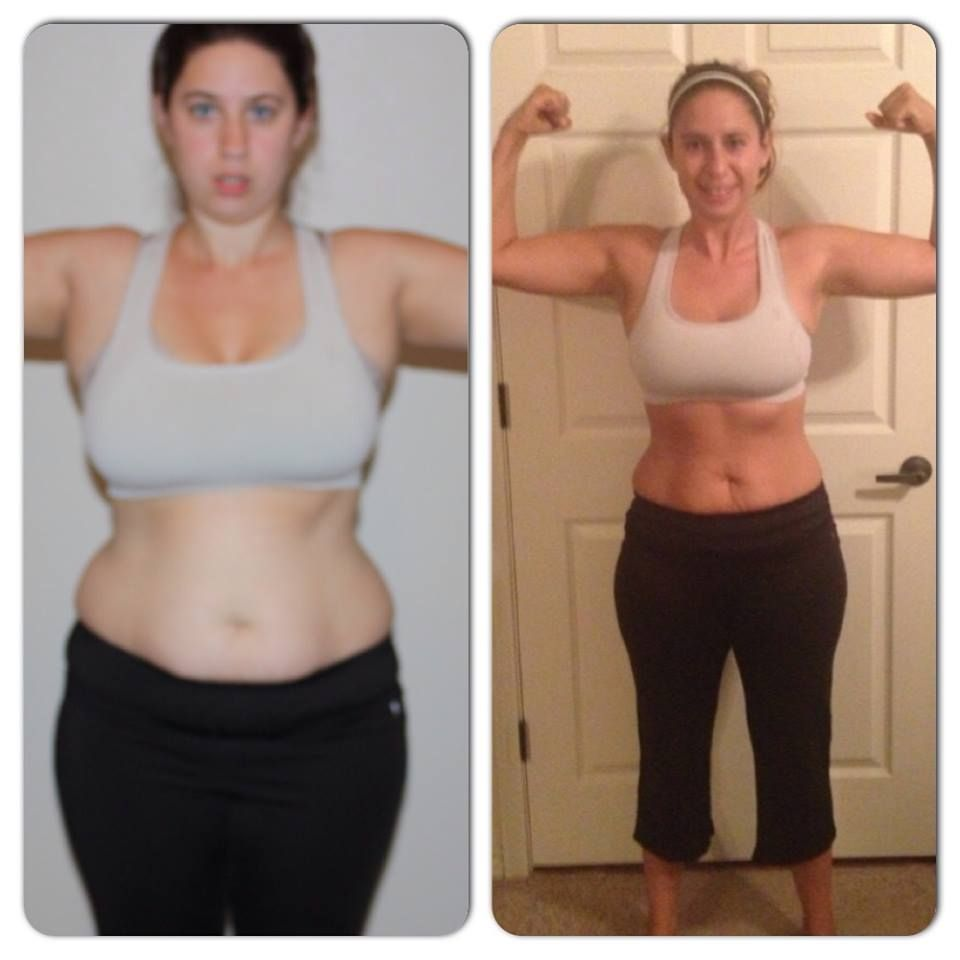 Weight loss doral