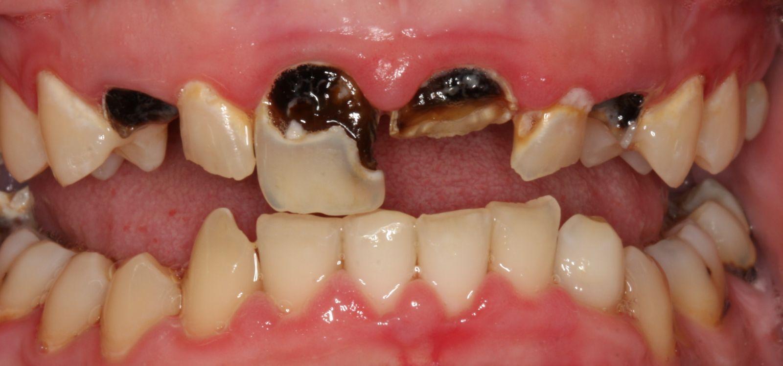 Tooth Decay, #caries rampante o #caries de biberón. No permitas que tu hijo vaya a la cama con un biberón de leche o infusión azucarada.