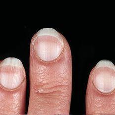 شكل أظافرك قد يكون مؤشر للاصابة بأحد الأمراض Infographic