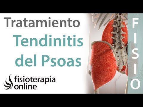 La Tendinitis Del Psoas Ocurre Con Frecuencia El Psoas Es Un Músculo Muy Importante Y Que Usamos Diariamente Por Lo Que Debes Estiramientos Tendinitis Iliaco