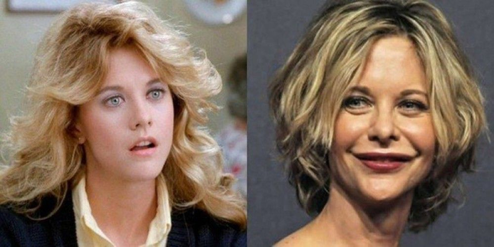 Image Result For Meg Ryan Before And After Bad Plastic Plastic