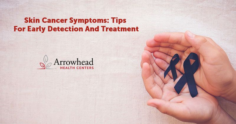 Skin Cancer Symptoms: Tips For Early Detection And Treatment Arrowhead Health Centers