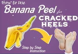 Banana Pack for Cracked Heels