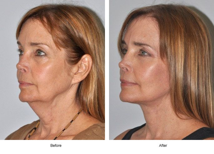 17 Best images about Facelift Surgery on Pinterest | New you ...