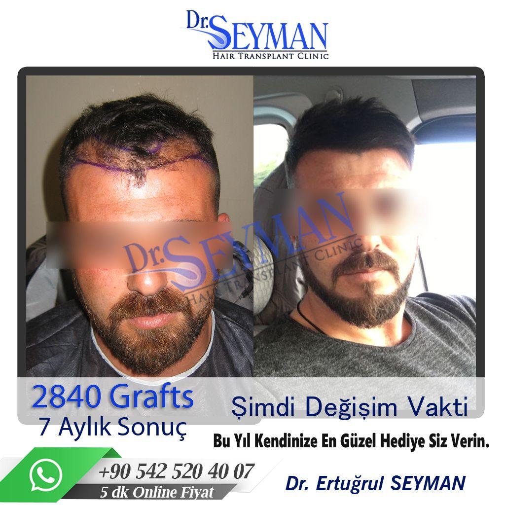 Antalya Sac Ekimi Panosundaki Pin