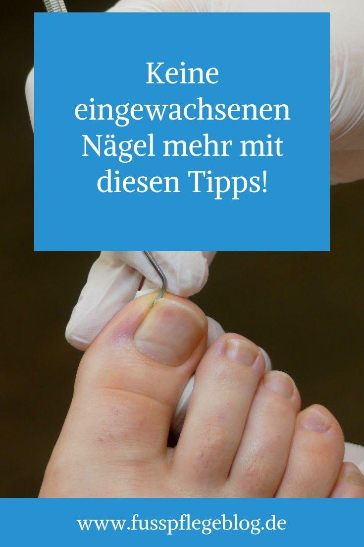 Eingewachsenen salbe zehennagel für Eingewachsener Nagel,