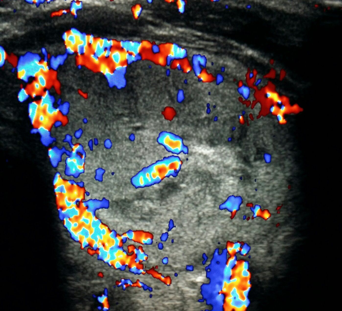 Doppler ultrasound of the thyroid gland shows a for Echogenic mural nodule