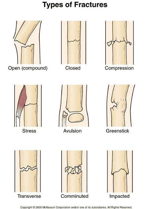 How To Use A Sam Splint To Treat Bone Fractures Broken Bones