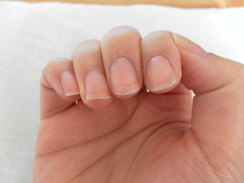 Reasons for having peeling nails. You lack biotin, sulfur or B ...