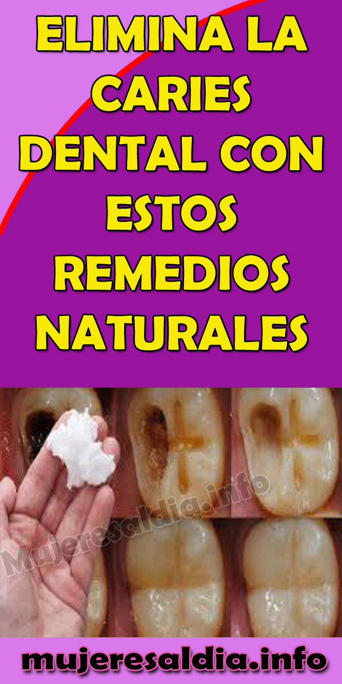 Elimina La Caries Dental Con Estos Remedios Naturales Caries Dental Remedios Bienestar Remedios Salud Dental Dental Care Cosmetic Dentistry