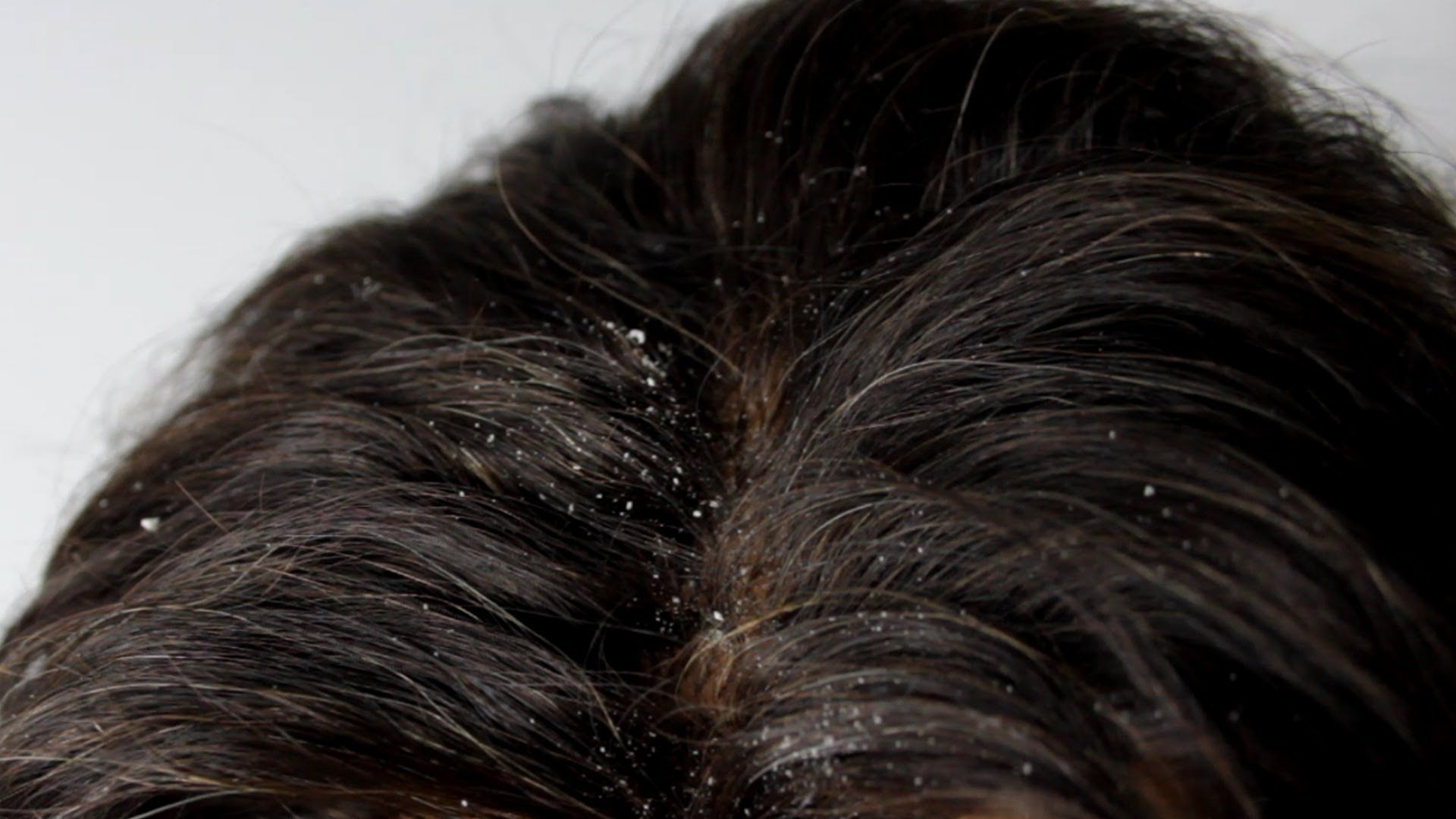 How To Get Rid Of Dry Scalp Without Washing