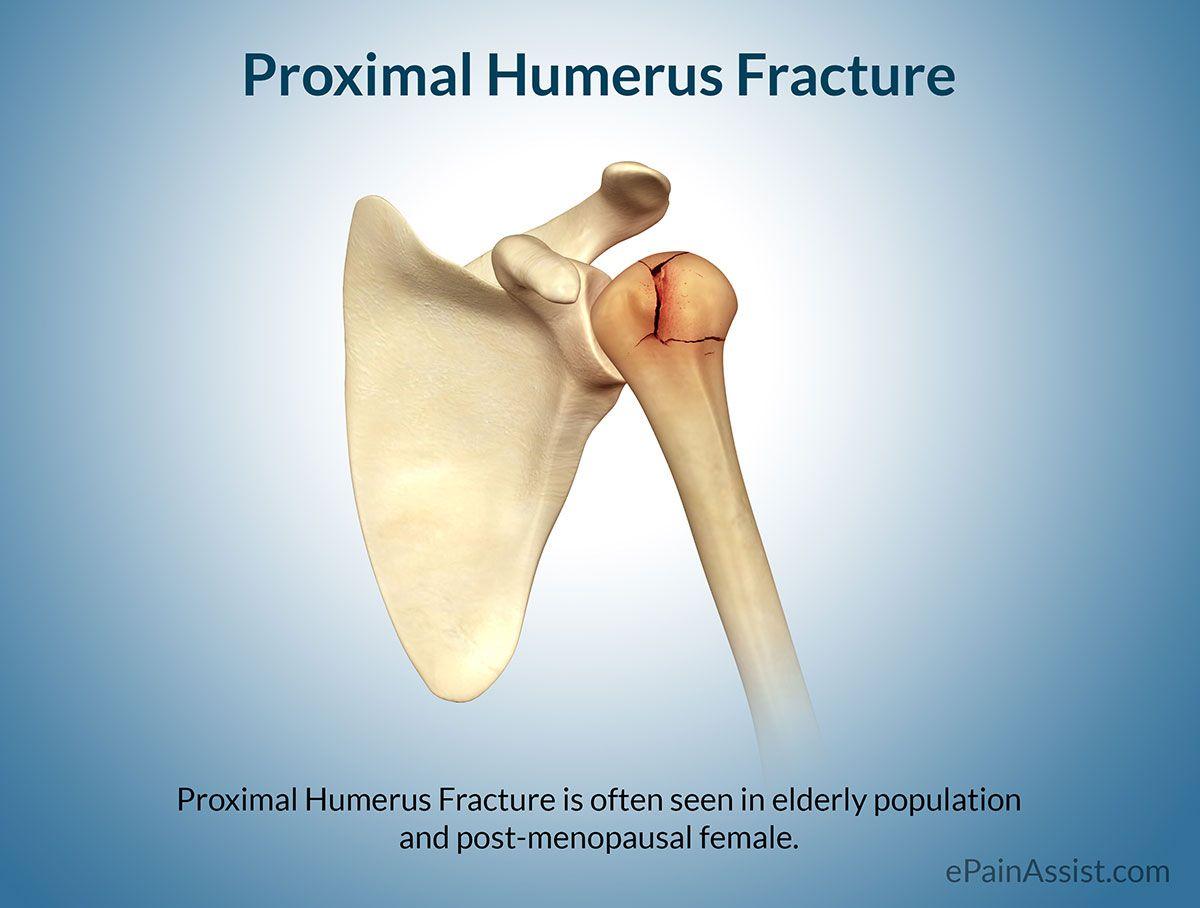 Proximal Humerus Fracture | Healthy Stuff | Pinterest | Shoulder ...