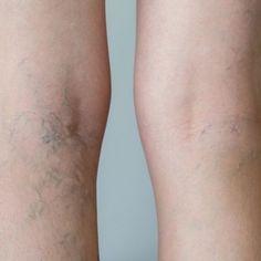 picioarele reci cu varicoză)