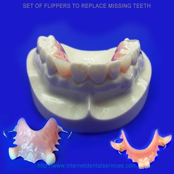 For Custom Made Flippers Technicians Require Your Dental Impressions This Can Be Done Using Dental Impression Kit Dental Impressions Partial Dentures Dental