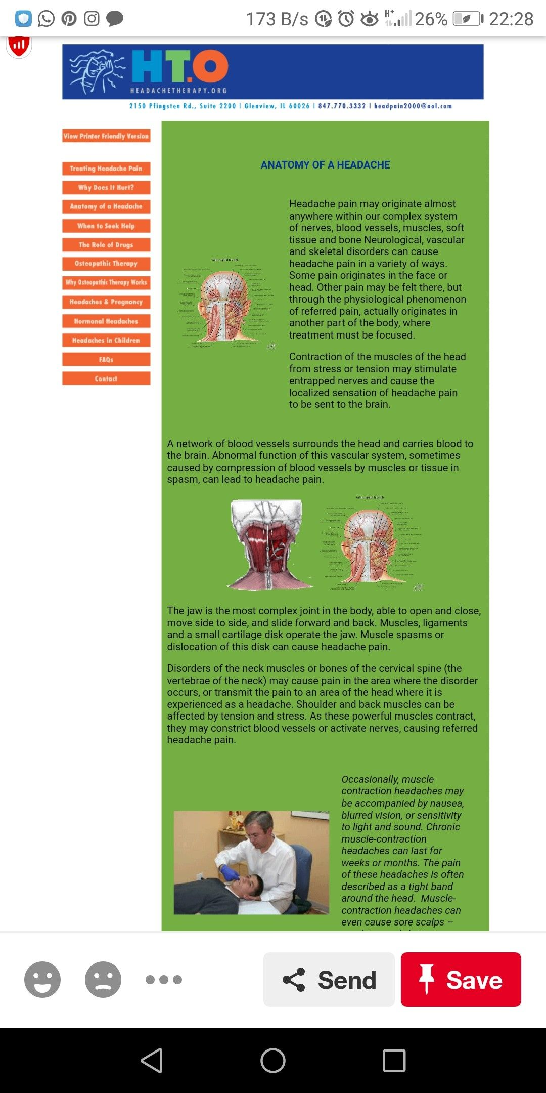 Pin by Claire Gates on b12 deficiency   Muscle spasms ...