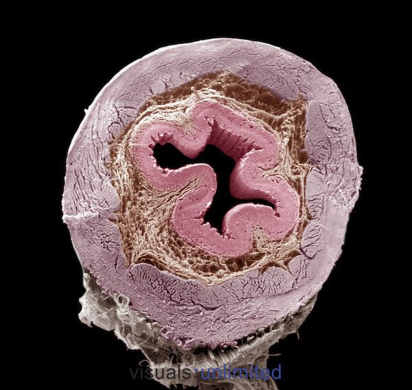 Cross-section of the esophagus showing, from the central region ...