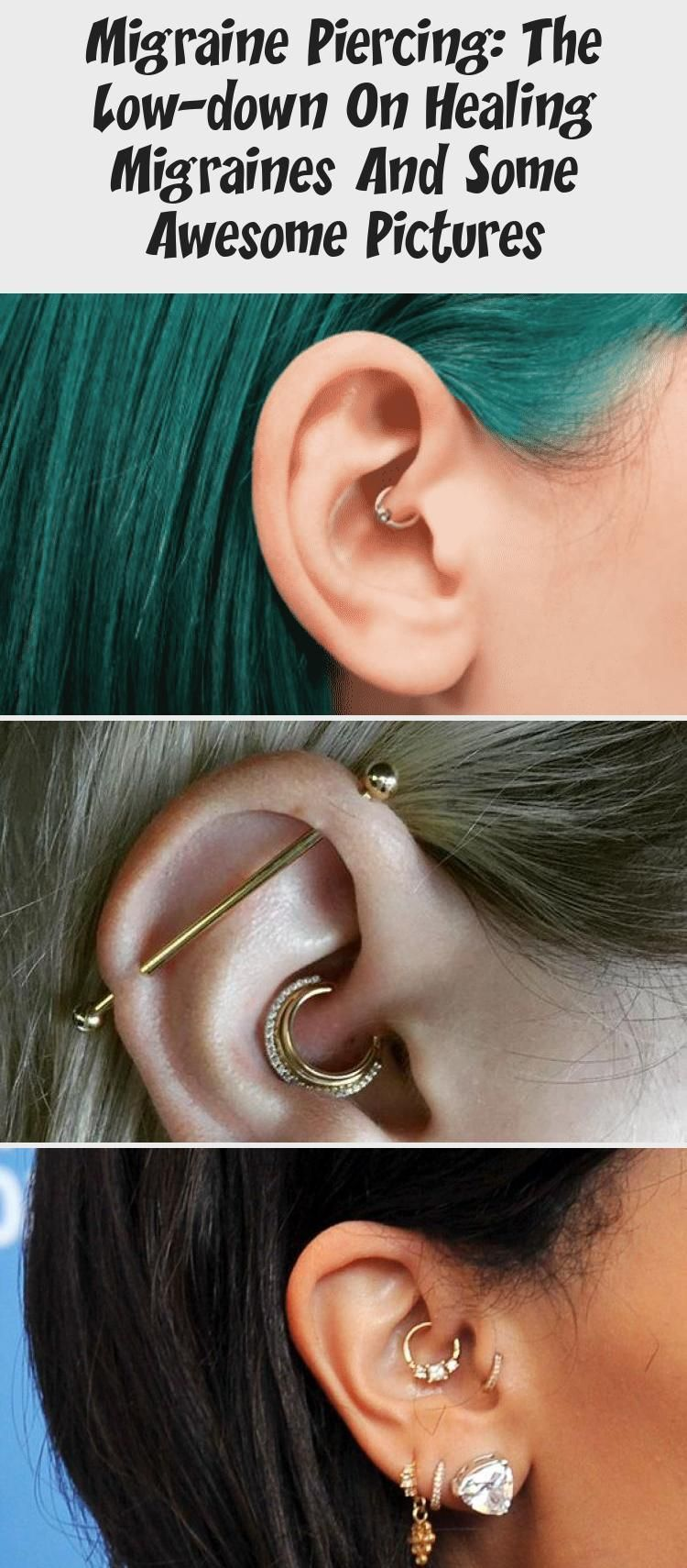 Migraine Piercing: The Low-down On Healing Migraines And Some Awesome Pictures - PIERCINGS ,  #Awesome #healing #Lowdown #Migraine #migraines #pictures #piercing #piercingbouche #PIERCINGS