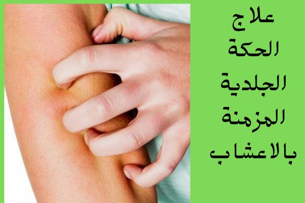 علاج الحكة الجلدية المزمنة بالاعشاب تحتوي بعض الاعشاب على زيت المنثول بنسة كبيرة وهو يعمل